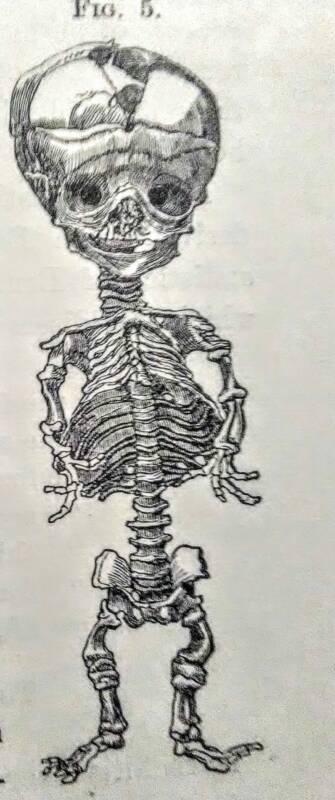 Скелет ребенка, страдавшего от рахита, зарисовка, XIX век / ©Wikimedia Commons