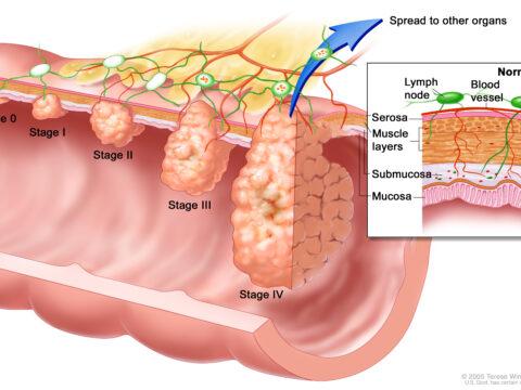 Общая причина рака и путь к выздоровлению